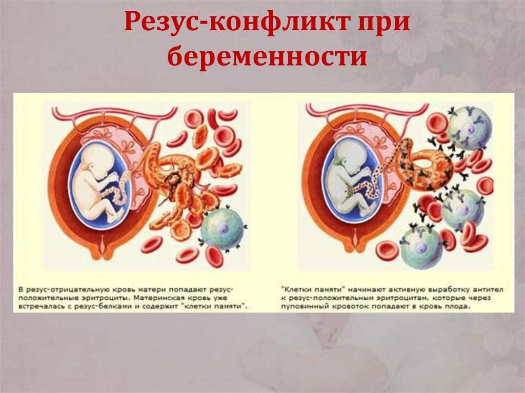 Таблица совместимости групп крови и резус-факторов для зачатия ребёнка, признаки несовместимости партнёров
