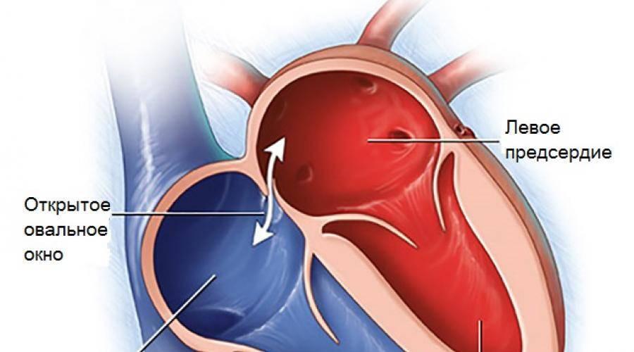 Пороки сердца врожденные и приобретенные: диагностика и лечение