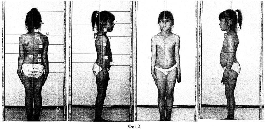 Проблемы с грудью у девочек