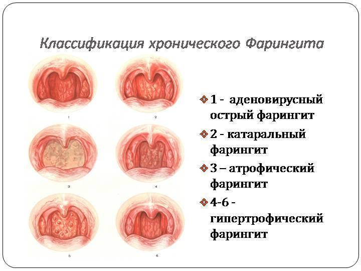 Фарингит у детей - симптомы болезни, профилактика и лечение фарингита у детей, причины заболевания и его диагностика на eurolab