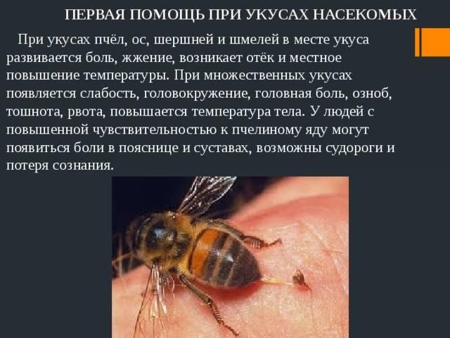 Укусы насекомых: как распознать и защититься
