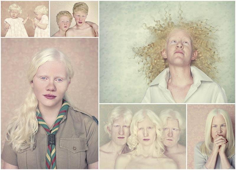 Офтальмология для детей с альбинизмом