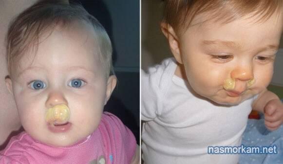 Насморк у ребёнка: как лечить зеленые, желтые или прозрачные сопли