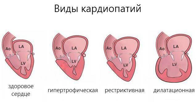 Гипертрофическая кардиомиопатия / заболевания / клиника эксперт