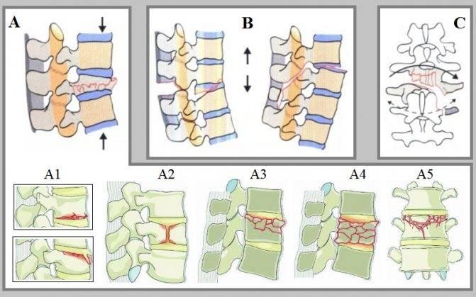 Переломы позвонков — симптомы и способы лечения переломов позвонков в клинике целт
