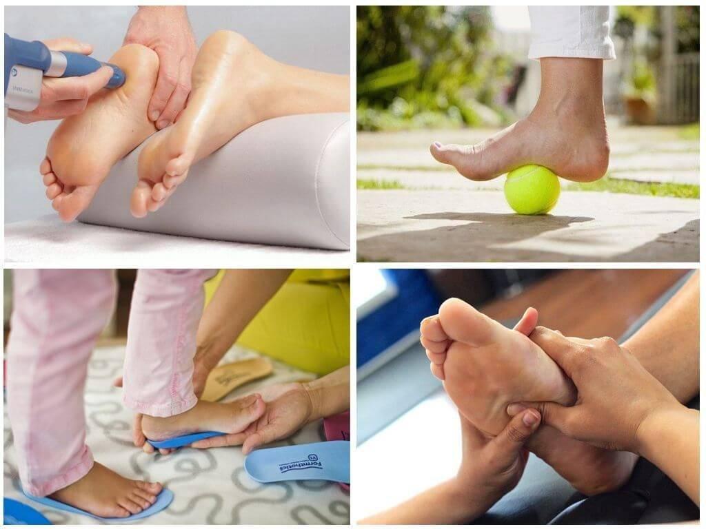 Плоскостопие у детей | фото до и после, операция, отзывы, лечение, реабилитация и восстановление
