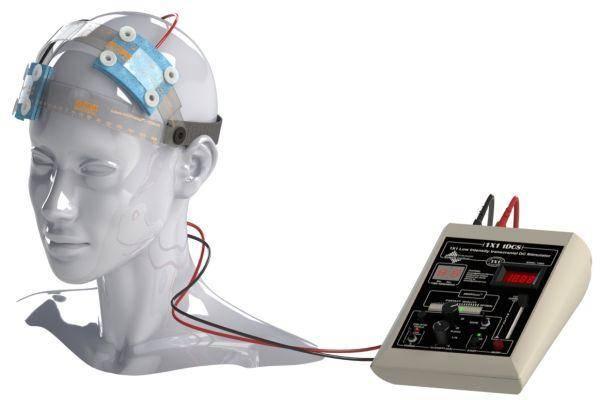 Микрополяризация мозга в лечении неврологических заболеваний.