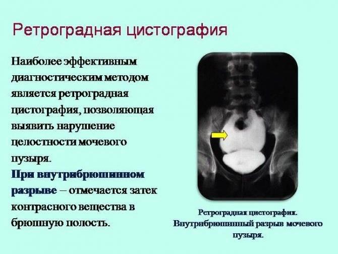 Рентгенография мочевого пузыря (цистография) - цена, сделать рентген мочевого пузыря в клинике «мать и дитя» в москве
