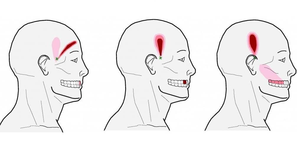 5 способов как обезболить зуб мудрости дома
