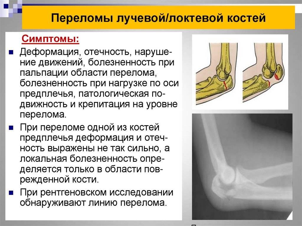 Переломы костей — 5 видов переломов и лечение причин