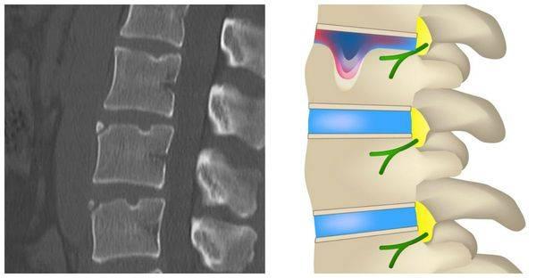 Лечение корешкового синдрома пояснично крестцового отдела позвоночника в москве в клинике дикуля: цены, запись на прием | центр дикуля