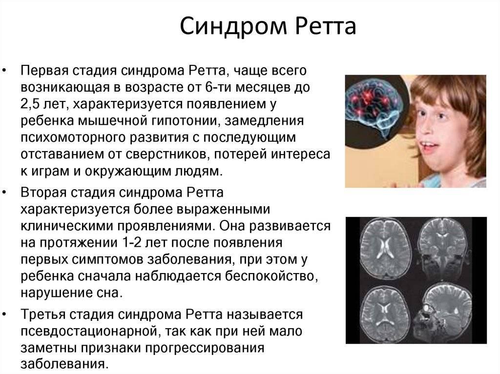 Синдром ретта - вики