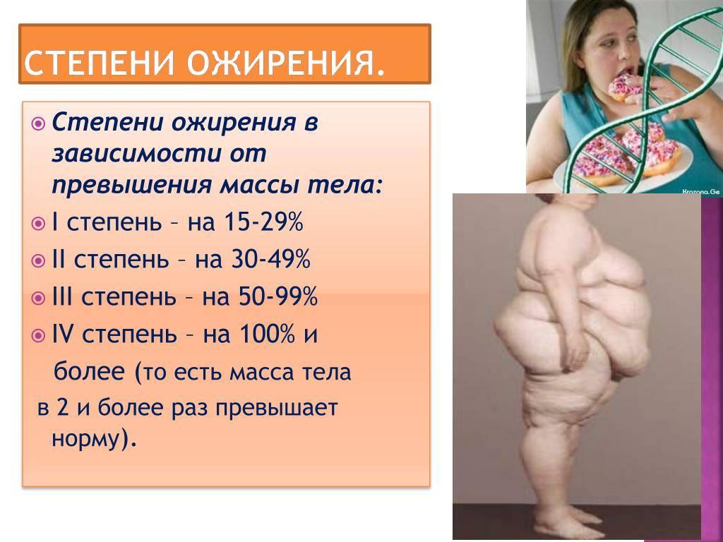 Ожирение у детей и подростков: причины, опасности, терапия