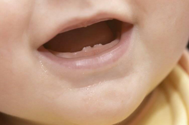 Сколько зубов должно быть у ребенка?