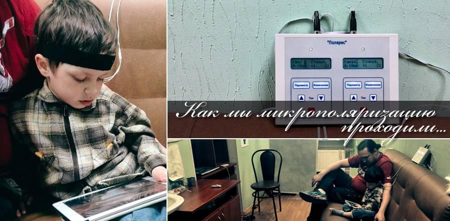 Микрополяризация – национальный медицинский исследовательский центр психиатрии и неврологии им. в.м. бехтерева