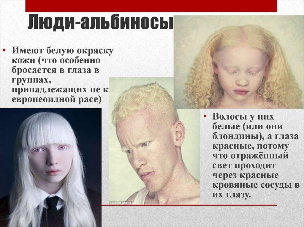 Альбинизм у ребенка: диагностика и лечение в клинике фэнтези в москве