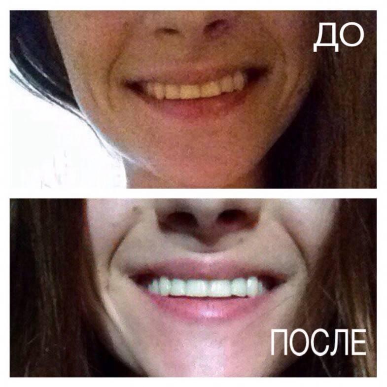 Покрытие зубов у детей
