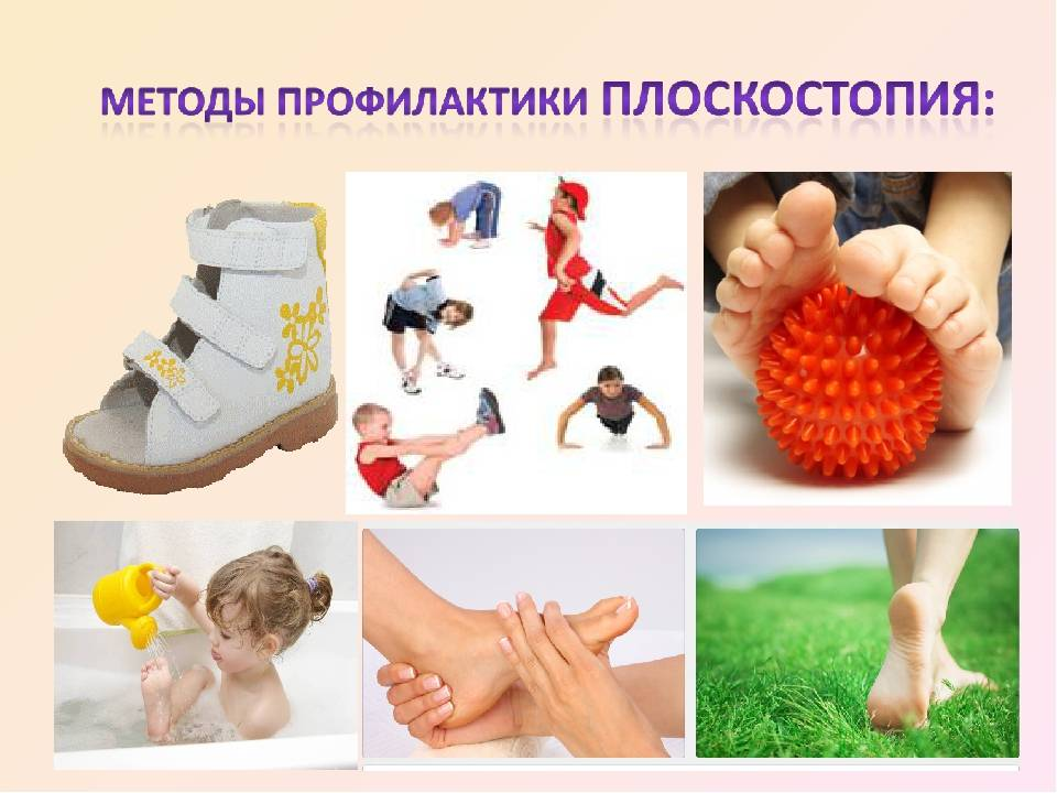 Профилактика плоскостопия у детей - способы профилактики детского плоскостопия - блог стельки.ру