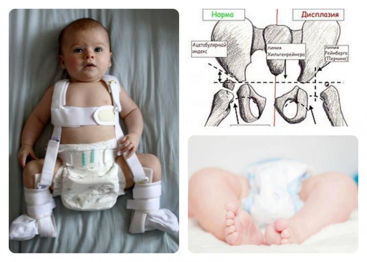 Синовит тазобедренного сустава : симптомы и лечение синовита тазобедренного сустава | компетентно о здоровье на ilive