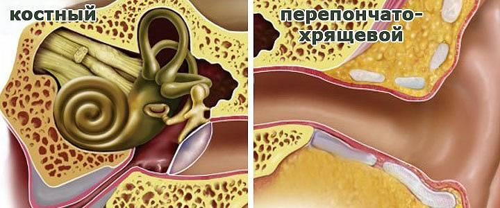 Почему идёт кровь из ушей (из уха) - причины, что делать, кровотечение при отите, при чистке, у взрослых в том числе + видео