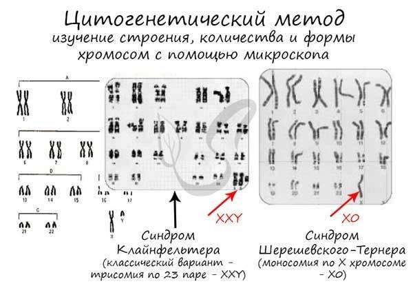 Пренатальный скрининг; хромосомные аномалии