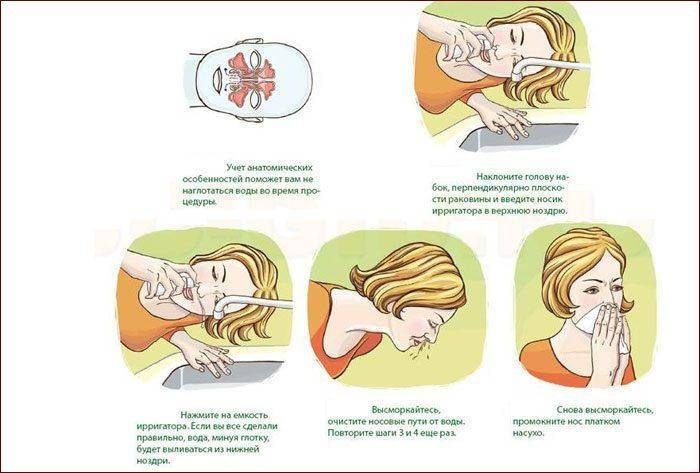 Как лечить заложенность носа при насморке?