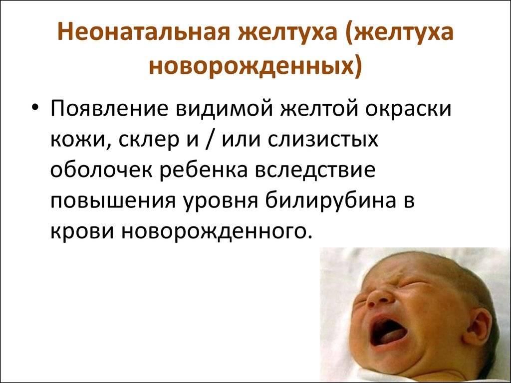 Когда у малыша пройдет младенческая желтуха?   детская городская поликлиника № 32