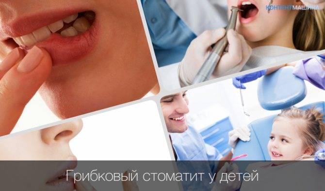 Стоматит у детей: виды и лечение | healthy dent (киев)