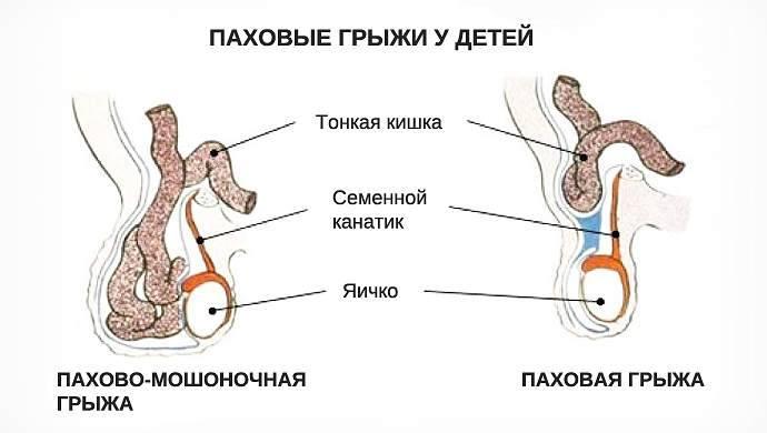 Паховая грыжа у мужчин: диагностика, симптомы, ущемленная и пахово-мошоночная грыжа, лечение