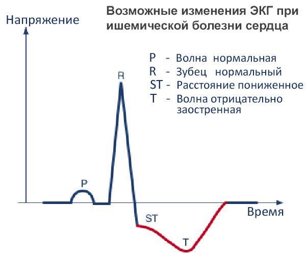 Расшифровка экг: как правильно расшифровать кардиограмму   университетская клиника