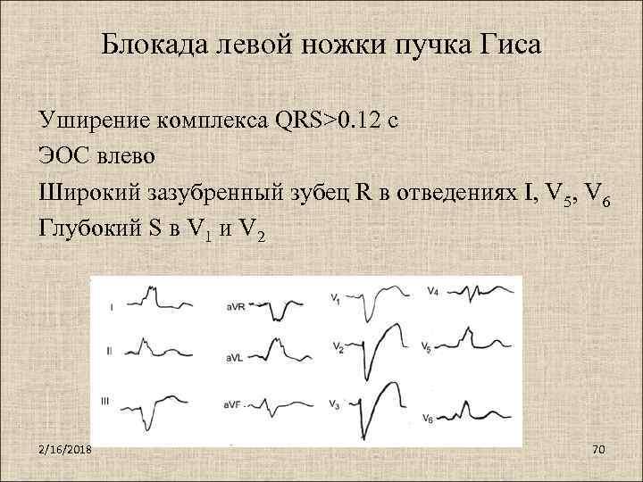 Изменения на экг при сердечных блокадах