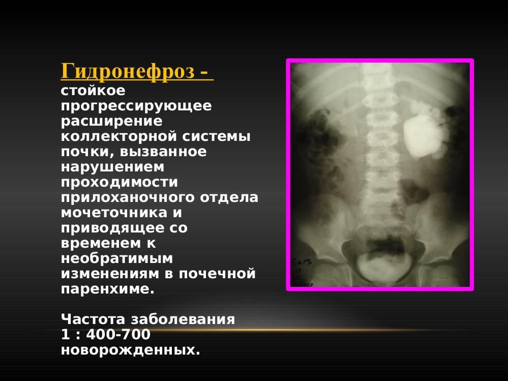 Что вызывает гидронефроз?