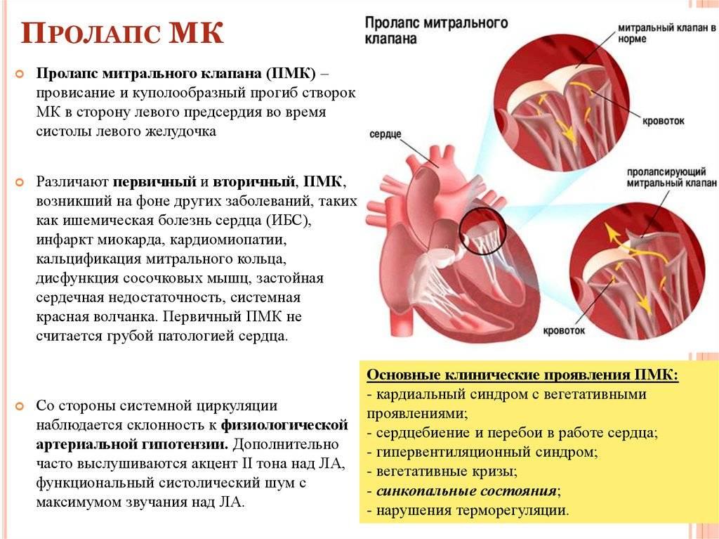Пролапс митрального клапана — википедия. что такое пролапс митрального клапана
