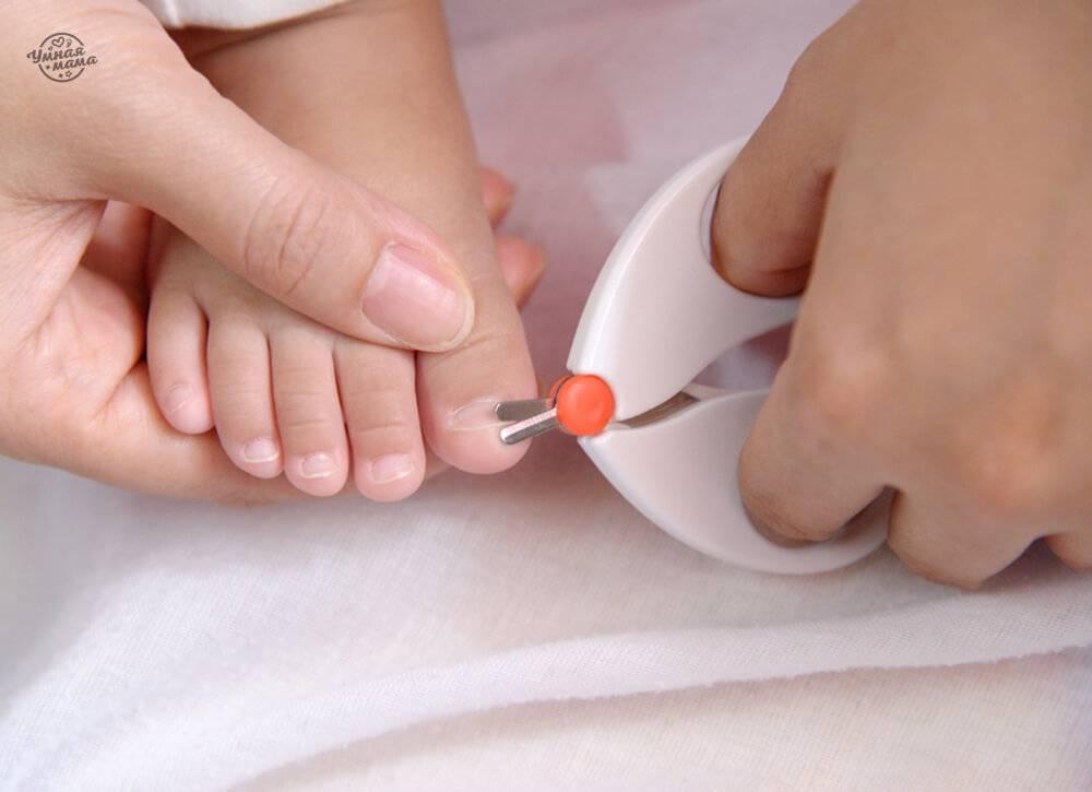 О каких диагнозах расскажут ногти ребенка?