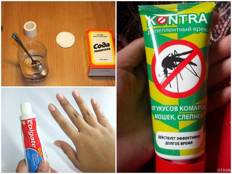Как уберечь ребенка от укусов комара