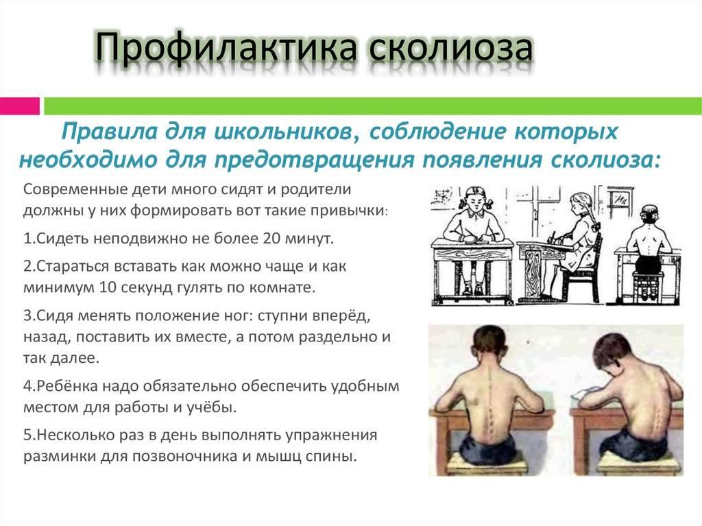 Упражнения для осанки для детей (видео) | компетентно о здоровье на ilive