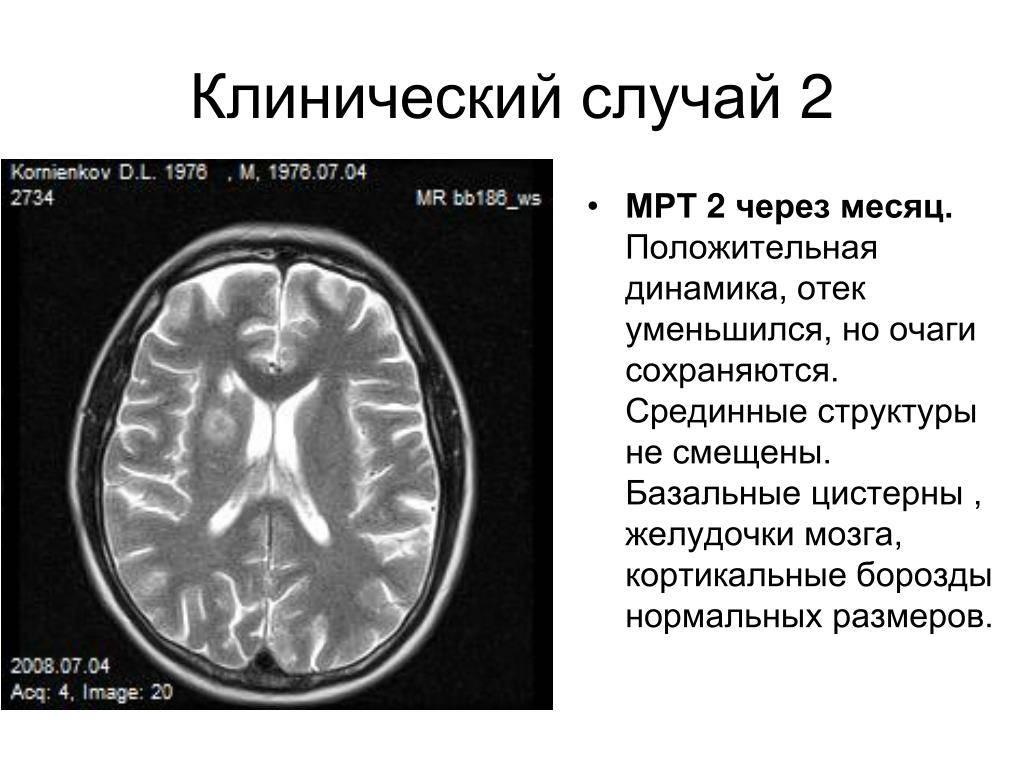 Боковые желудочки мозга: норма