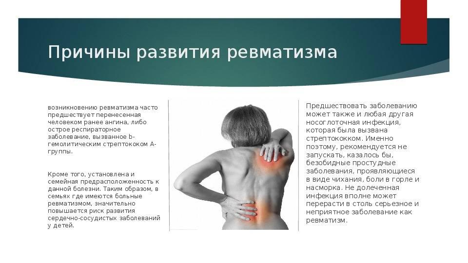 Болезнь, которой нет: ревматизм у детей