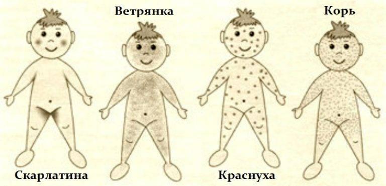 Экзантема   симптомы   диагностика   лечение - docdoc.ru