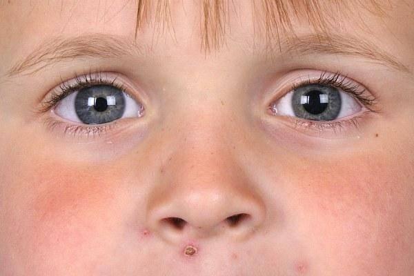 Расстройства личности у детей