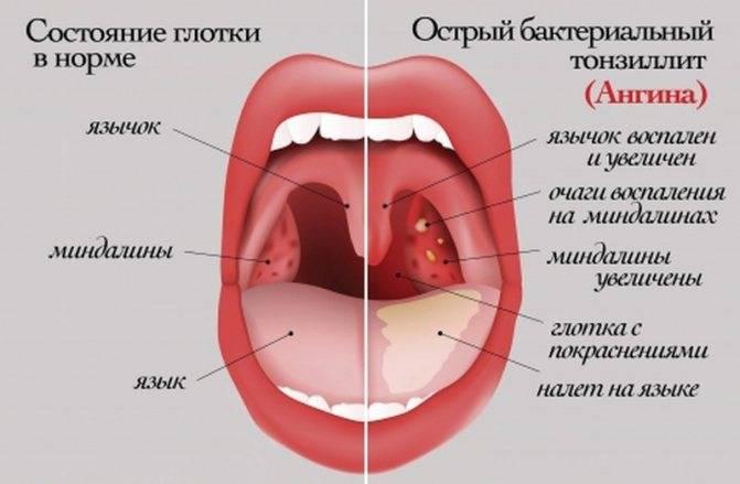 Температура при ангине