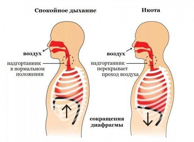 Икота — рефлекс и симптом заболеваний | университетская клиника