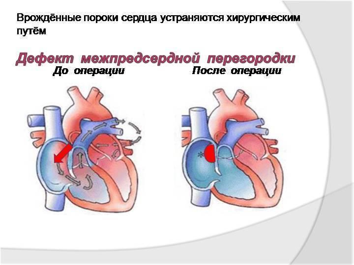 Эхокардиография при дмпп
