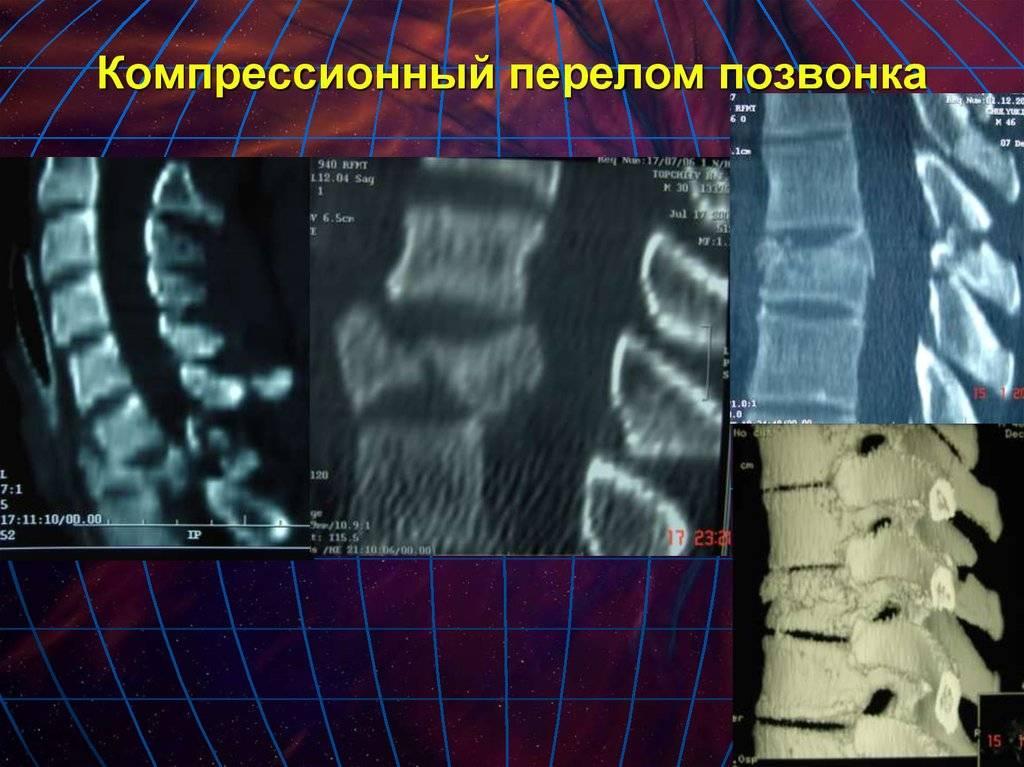 Реабилитация при переломах позвоночника (искусственная коррекция движений и др.)
