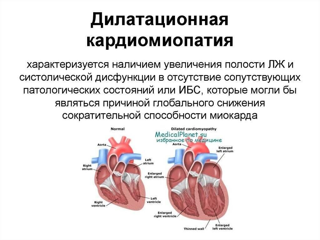 Диагностика дилатационной кардиомиопатии у детей   компетентно о здоровье на ilive