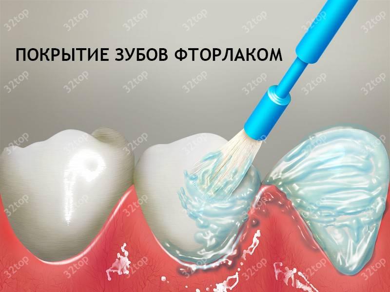 Покрытие зубов фторалаком в реутове