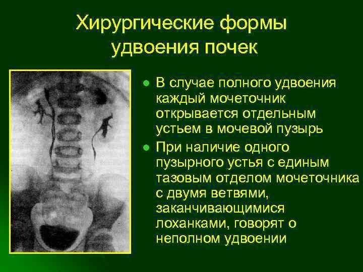 Лапароскопия гидронефроза почек у детей, цена хирургической операции.   москва