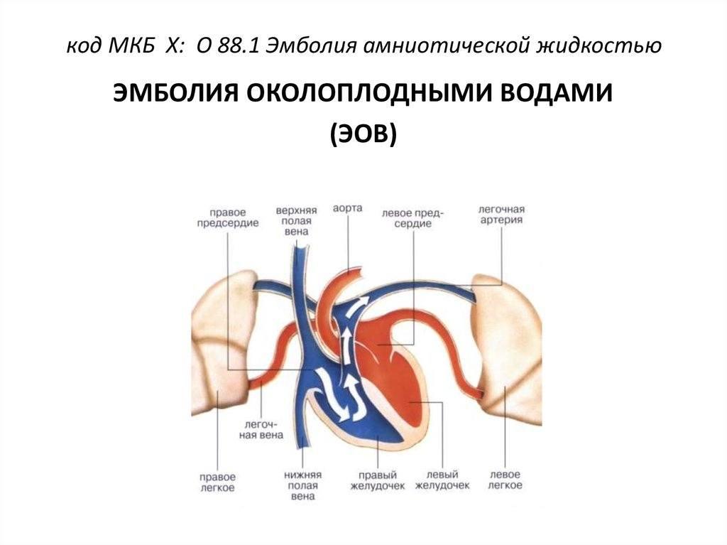 Тромбоэмболия (тромбы) - что такое, профилактика и возможные осложнения