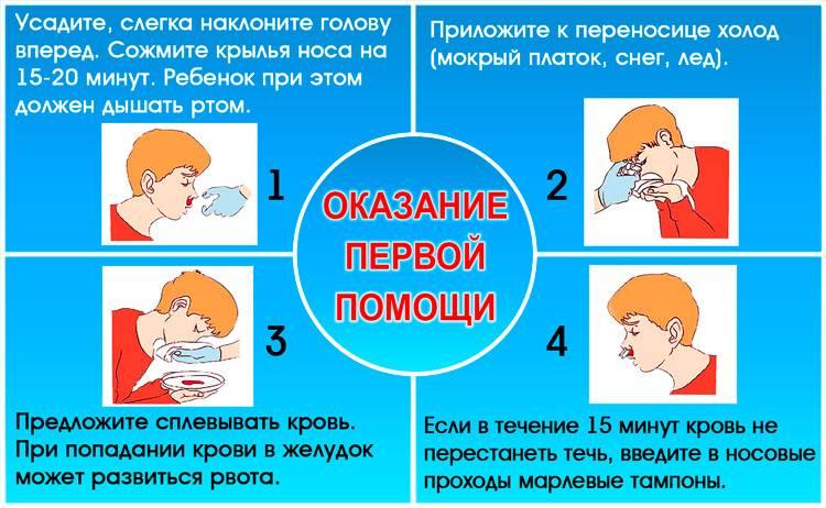 Лечение носового кровотечения | компетентно о здоровье на ilive