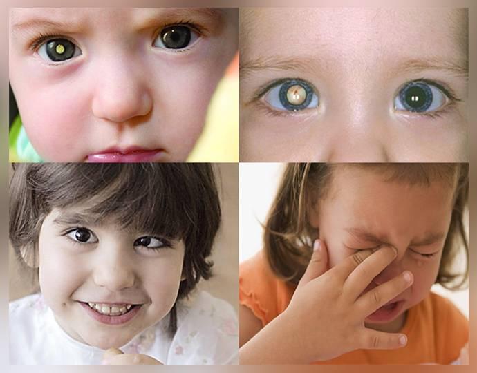 Сходящееся косоглазие у детей - причины, лечение